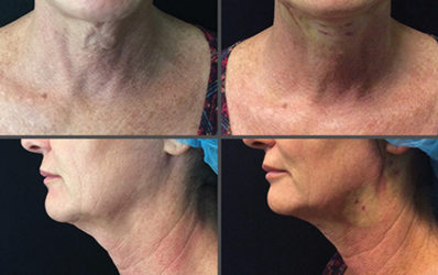 Silhouette InstaLift™ – Advanced Dermatology & Cosmetic Care